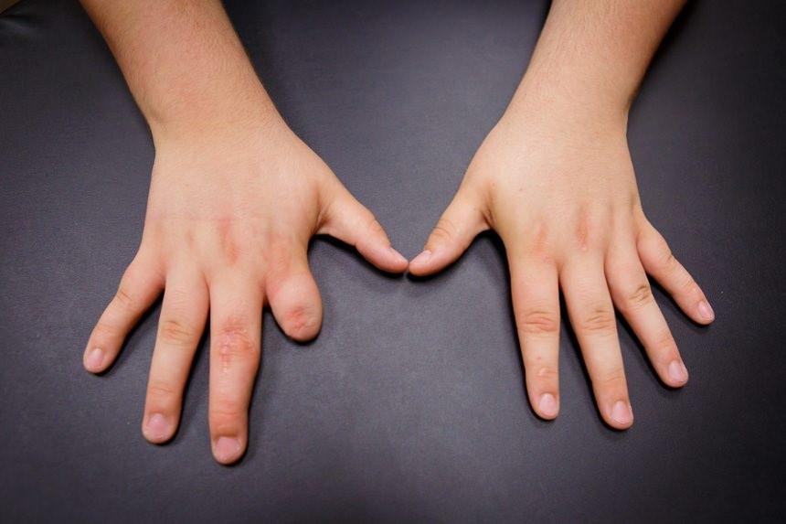 نحوه دریافت معافیت قطعی انگشت دست / شرایط معافیت قطعی بند انگشت